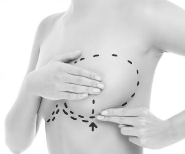 augmentation mammaire en suisse