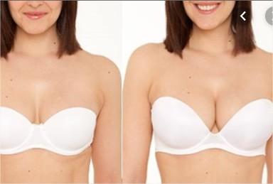 correction-des-seins-chirurgie-esthétique