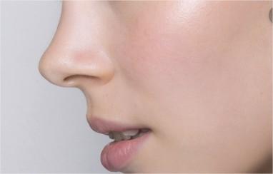 rhinoplastie-chirurgie-esthétique--
