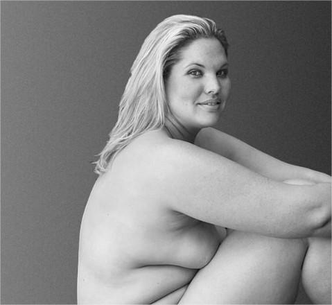 Obésité-anneau-gastrique-liposuccion