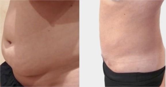 perdre-du-poids-avant-liposuccion