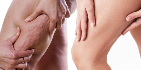 Cellulite et otoplastie