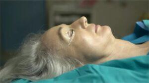 chirurgie-paupieres-blepharoplastie