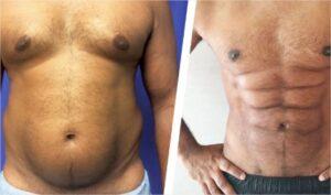 abdominoplastie la chirurgie du ventre
