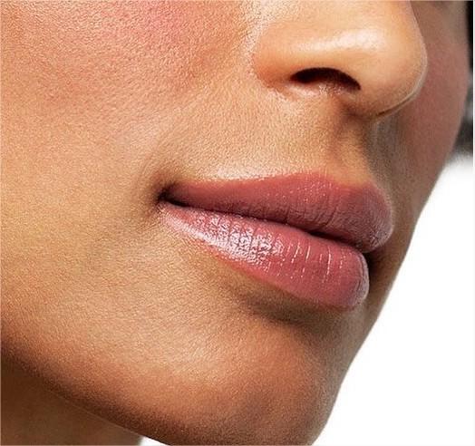 botox pour les lèvres